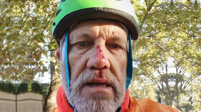 Claudio Tredicino incidente pista ciclabile viale Rossini Roma